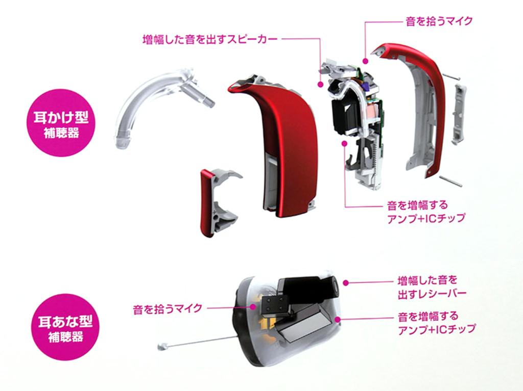 補聴器の構造 耳掛け型と耳あな型